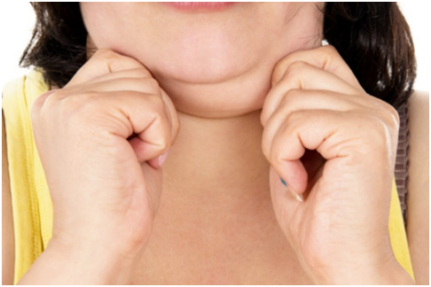 How to get rid of double chin without surgery