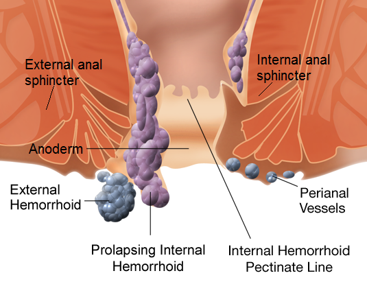 How to Get Rid Of Hemorrhoids Fast Naturally At Home