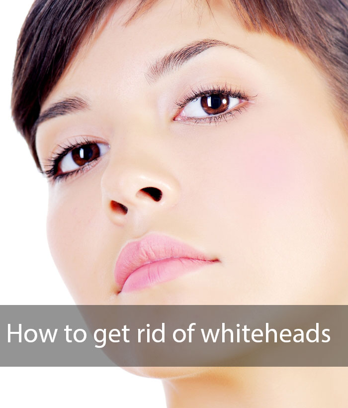 HOW TO GET RID OF WHITE HEADS ON FACE