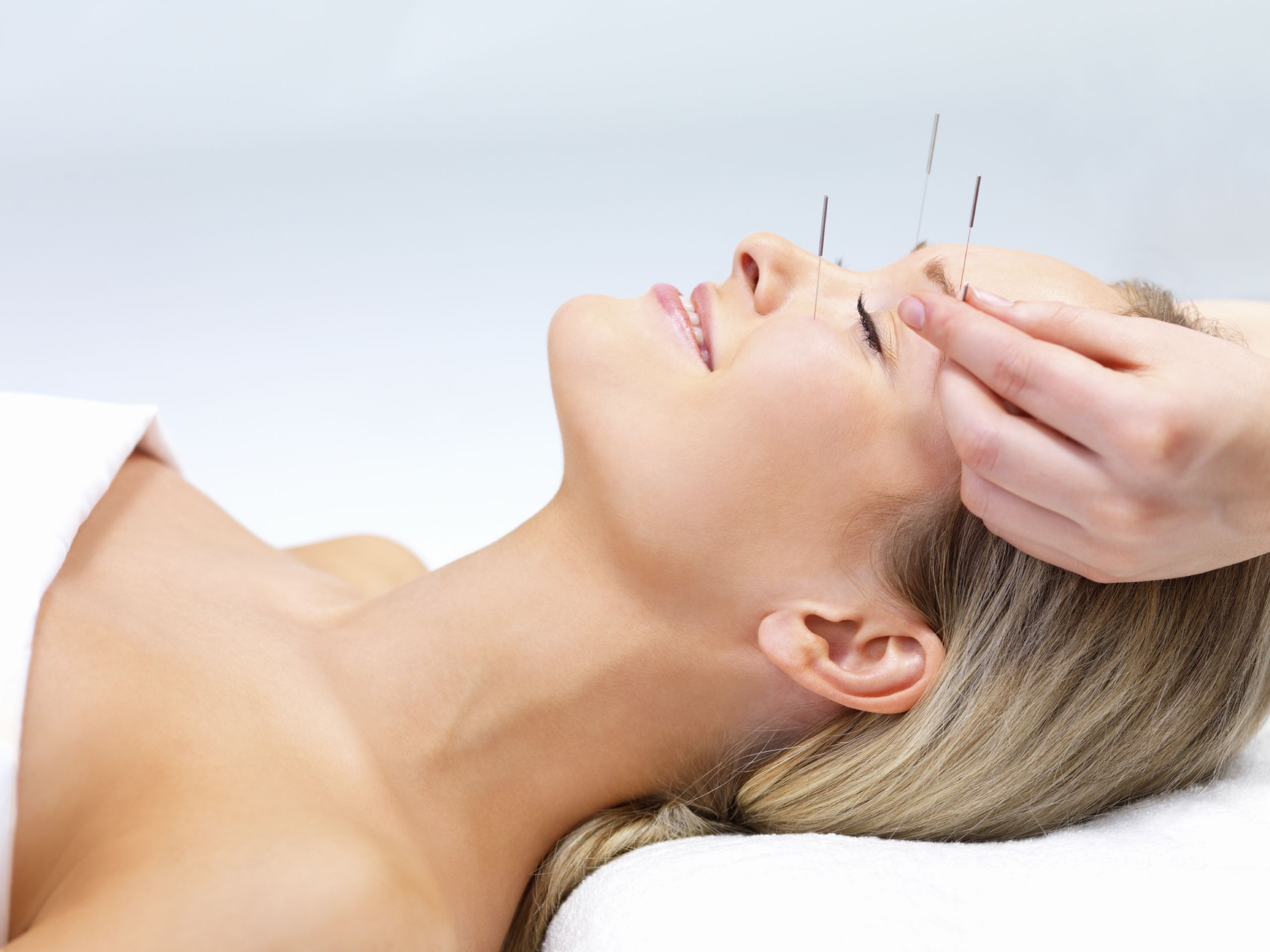 How-to-Get-Rid-of-Migraines-with-Acupuncture