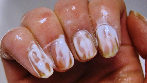 Whitening Toothpaste for yellow nails