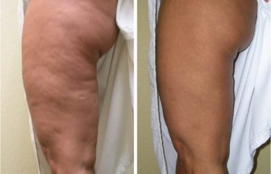 Cellulite Treatments – Ways To Reduce Cellulite